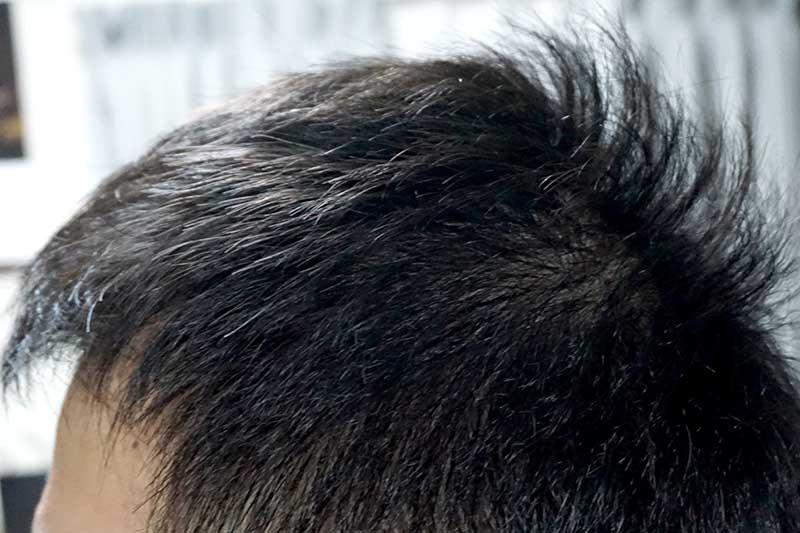 AGA治療3年10ヶ月目側頭部左