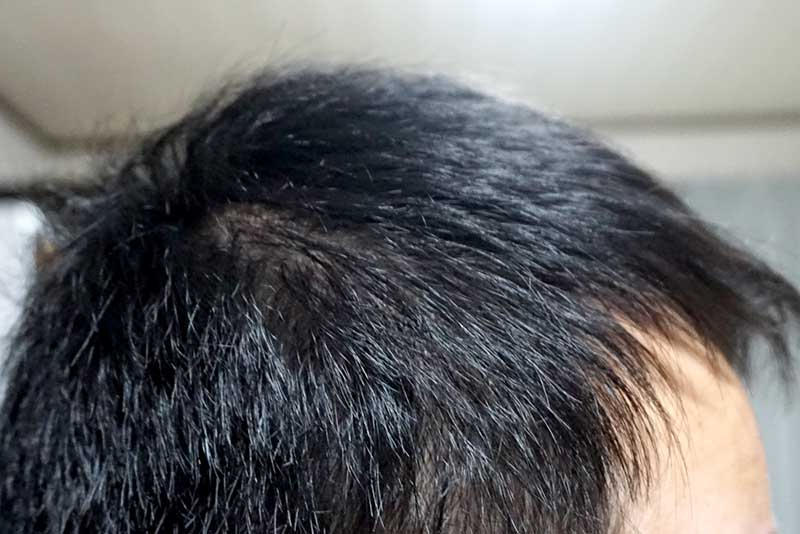 AGA治療3年10ヶ月目側頭部右