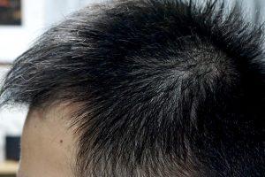AGA治療3年11ヶ月目側頭部左