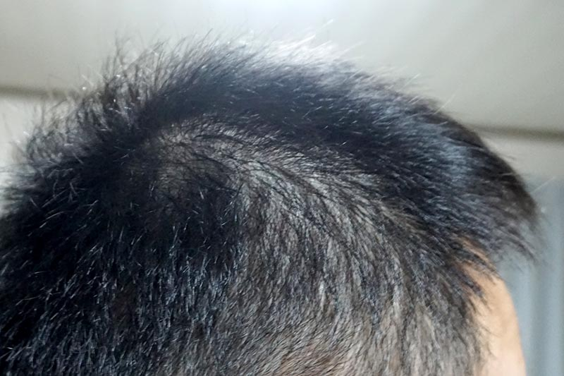 AGA治療3年11ヶ月目側頭部右
