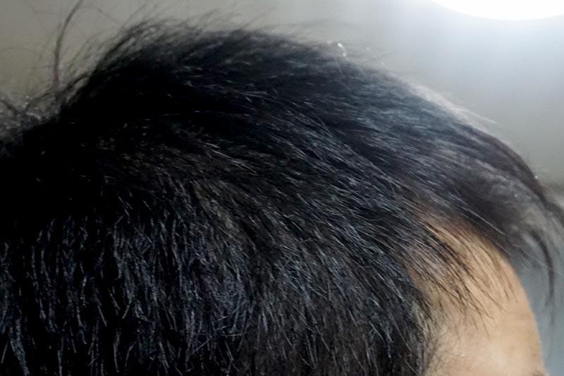 AGA治療4年1ヶ月目側頭部右