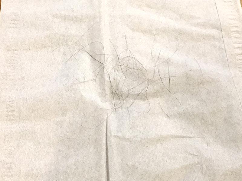 AGA抜け毛