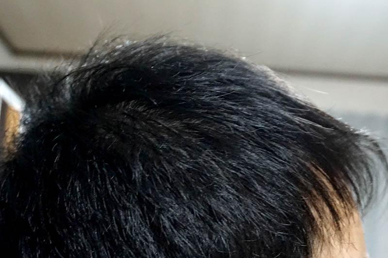 AGA治療4年2ヶ月目側頭部右