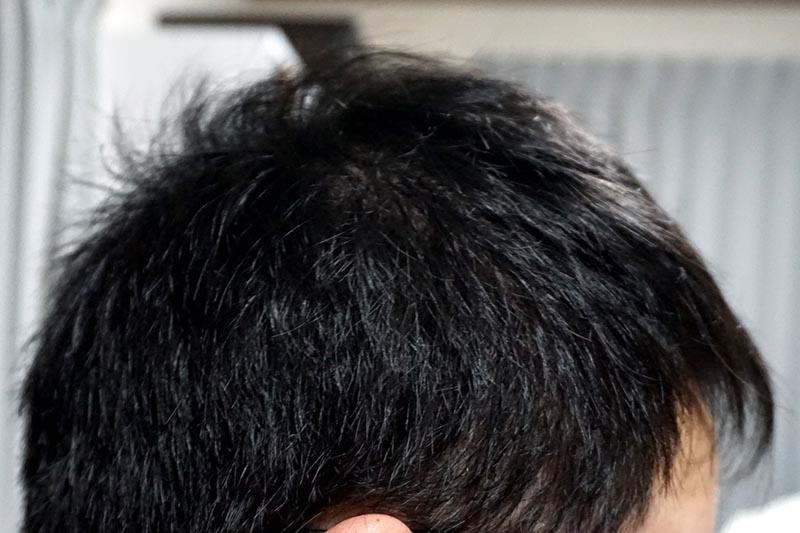AGA治療4年3ヶ月目側頭部右