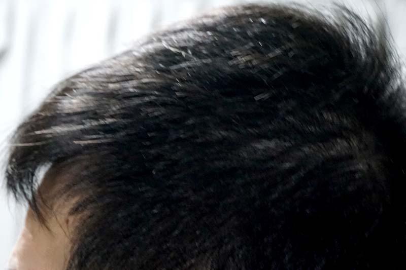 AGA治療4年4ヶ月目 側頭部左