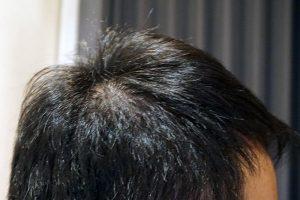 AGA治療4年5ヶ月目側頭部右