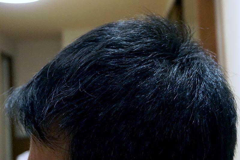 AGA治療4年6ヶ月目側頭部左
