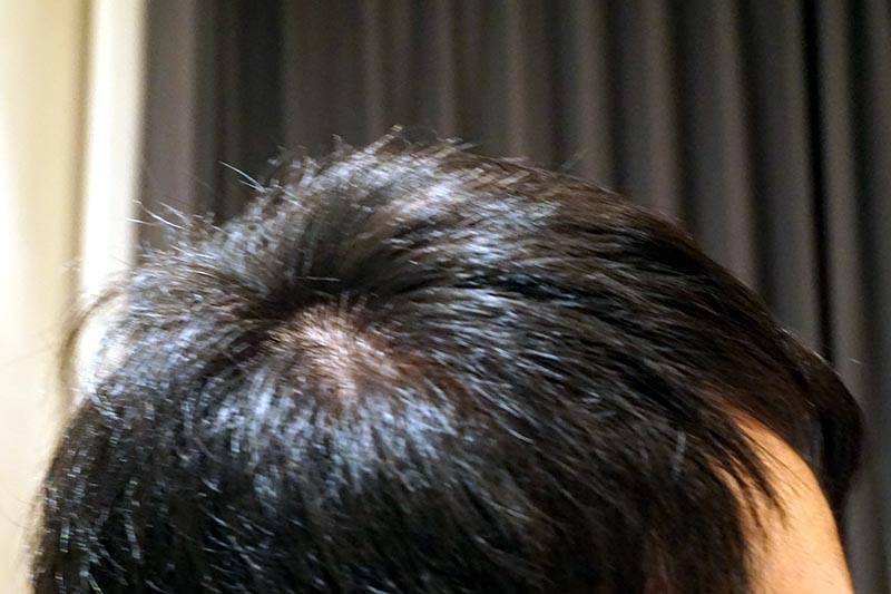 AGA治療4年6ヶ月目側頭部右