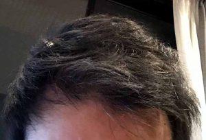 薄毛ヘアスタイル
