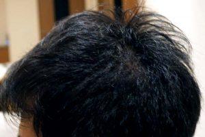 AGA治療4年7ヶ月目側頭部左