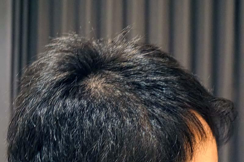 AGA治療4年7ヶ月目側頭部右