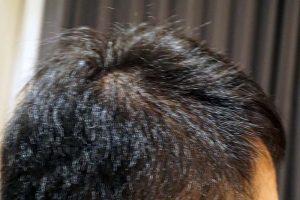 AGA治療4年8ヶ月目側頭部右