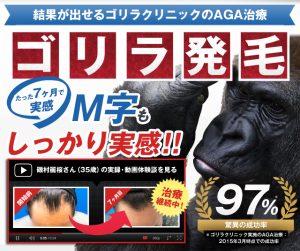 名古屋 ゴリラ クリニック AGA