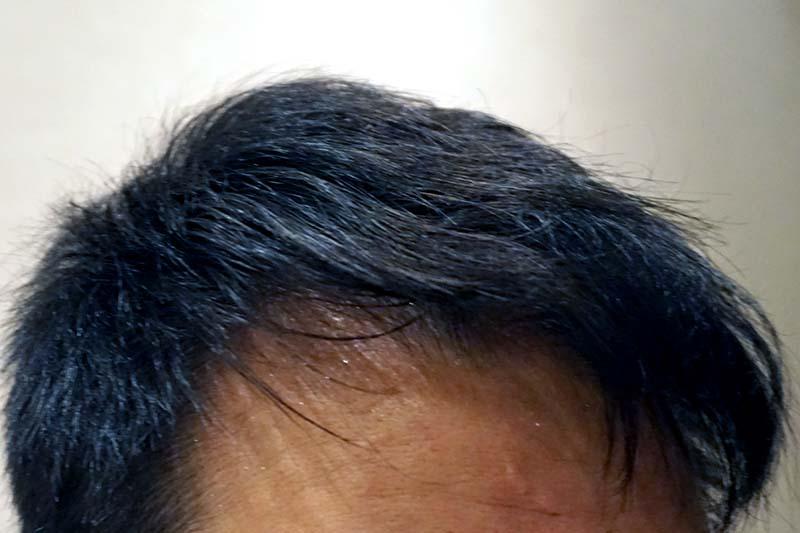 AGA治療4年9ヶ月目M字右