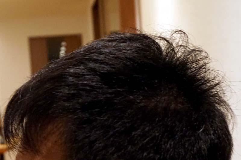AGA治療4年9ヶ月目側頭部左