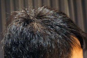 AGA治療4年9ヶ月目側頭部右
