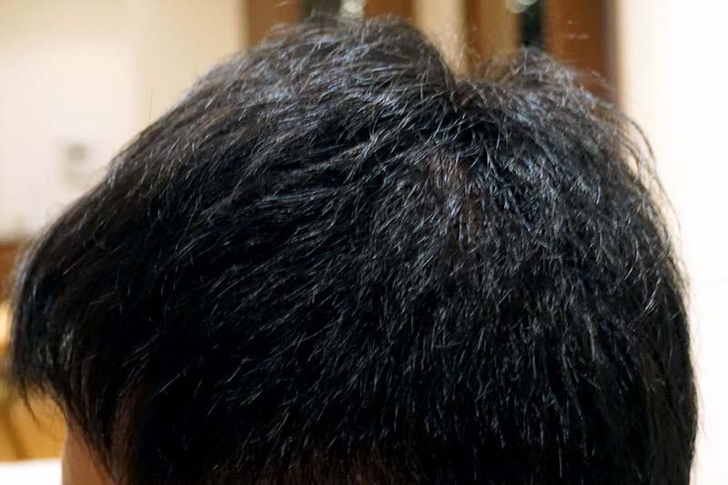AGA治療4年10ヶ月目側頭部左