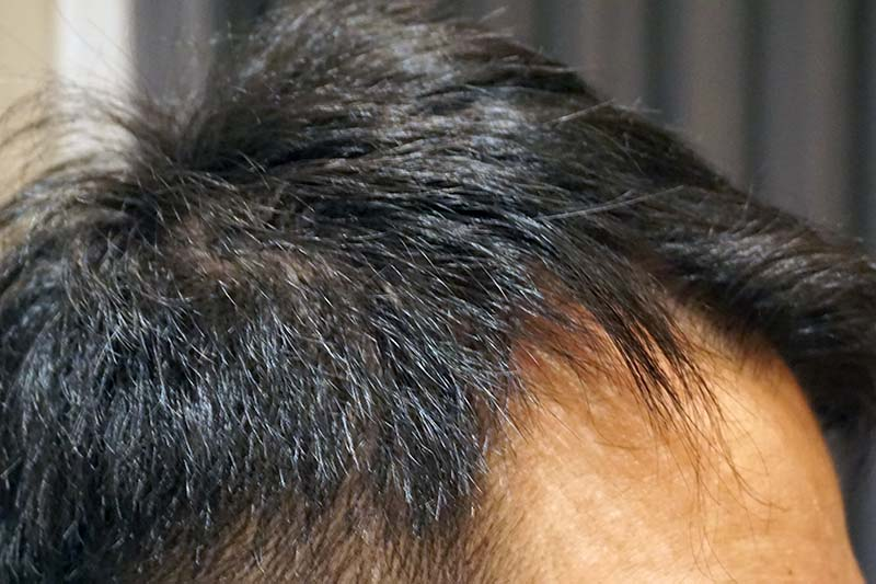 AGA治療4年10ヶ月目側頭部右
