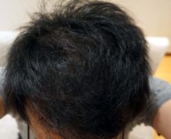 AGA治療4年10ヶ月目側頭部
