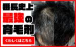 【人体実験】育毛剤マスターピースの効果を徹底検証!