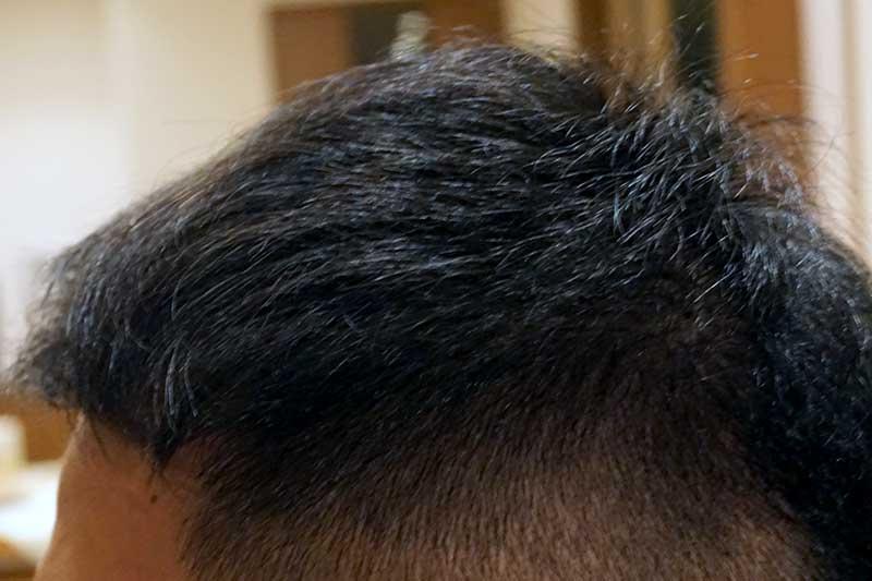 AGA治療4年11ヶ月目側頭部左