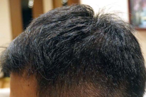 AGA治療5年2ヶ月目側頭部左