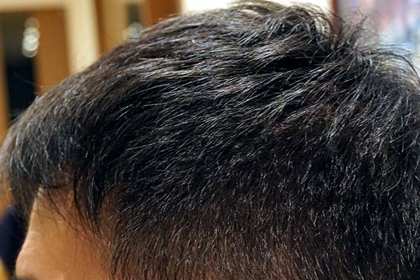 AGA治療5年3ヶ月目側頭部左