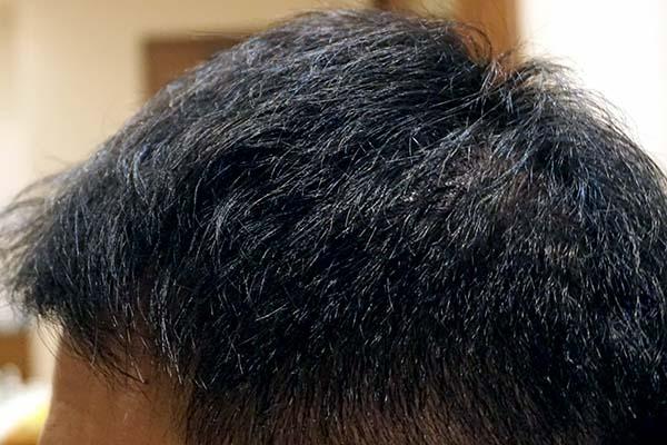 AGA治療5年4ヶ月目側頭部左