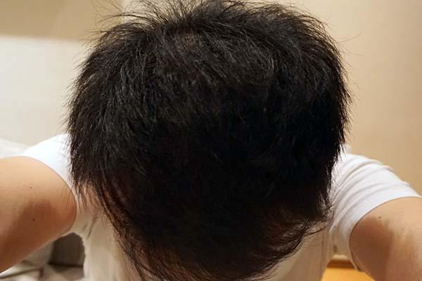 AGA治療5年4ヶ月目前頭部