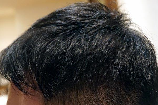 AGA治療5年5ヶ月側頭部左