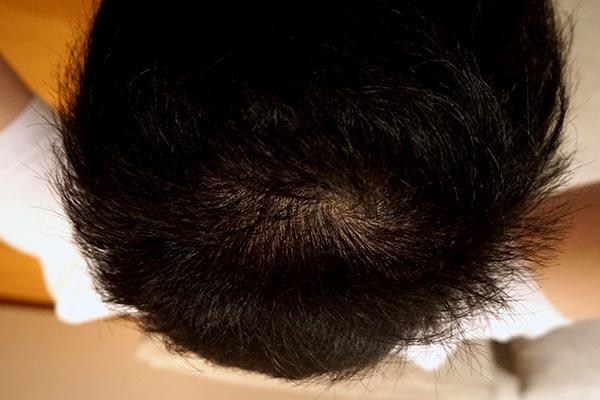 AGA治療5年5ヶ月頭頂部