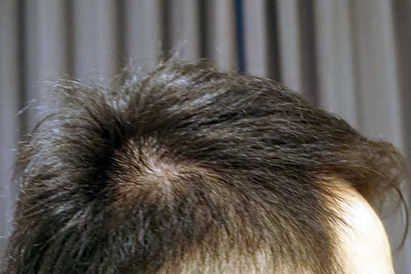 AGA治療5年6ヶ月目側頭部右