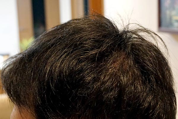 AGA治療5年8ヶ月目側頭部左