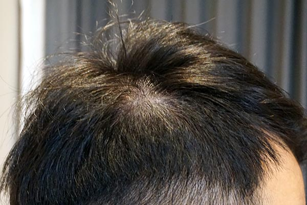 AGA治療5年8ヶ月目側頭部右