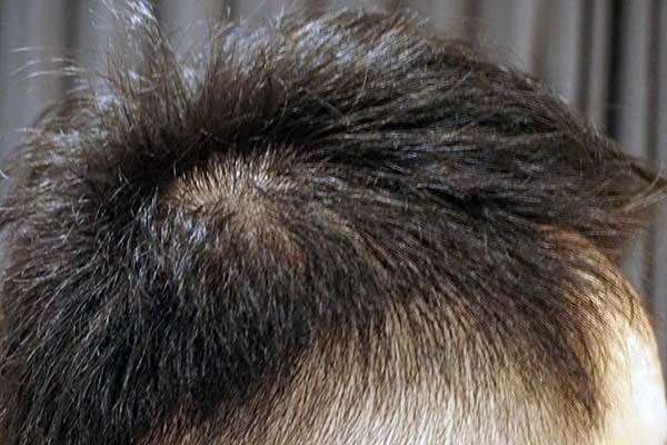 AGA治療5年9ヶ月目側頭部右
