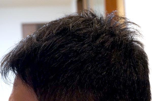 AGA治療1年10ヶ月目側頭部左
