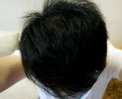 AGA治療1年10ヶ月目前頭部