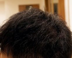 AGA治療5年11ヶ月目側頭部左