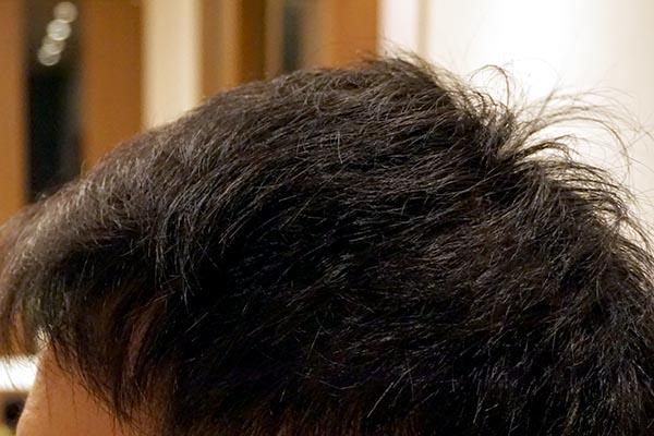 AGA治療6年目 側頭部左