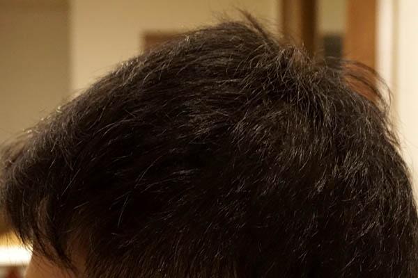 AGA治療6年1ヶ月目側頭部左