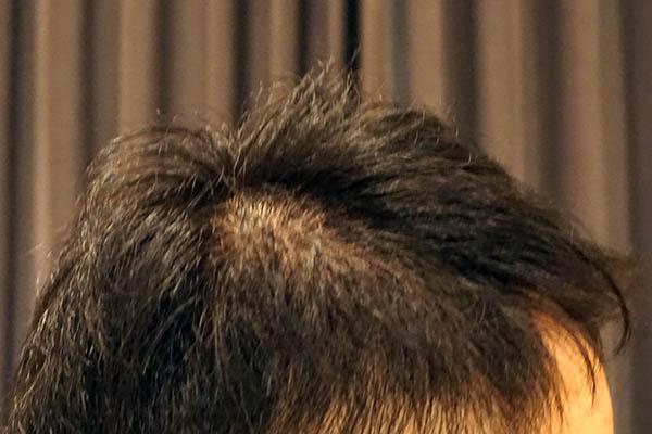 AGA治療6年1ヶ月目側頭部右