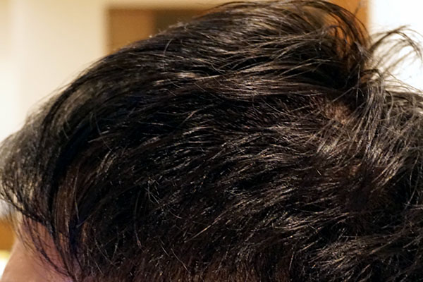 AGA治療6年2ヶ月目側頭部左