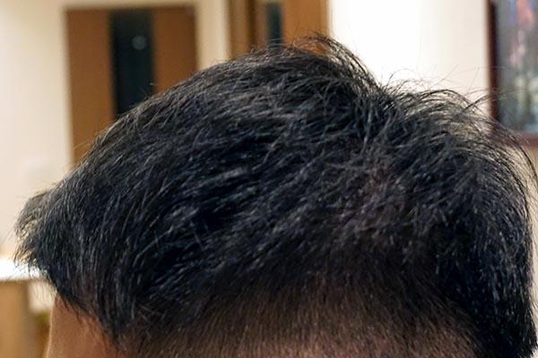 AGA治療6年3ヶ月目側頭部左