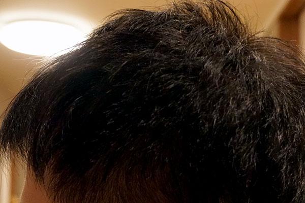 AGA治療6年5ヶ月目側頭部左