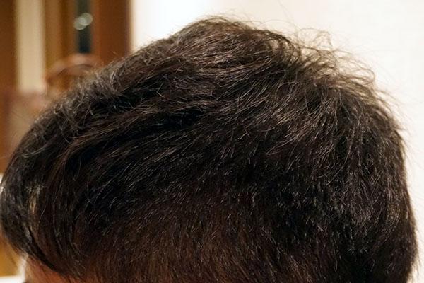 AGA治療6年8ヶ月目側頭部左