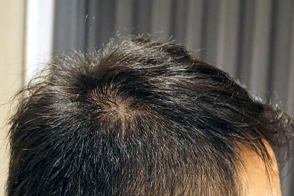 AGA治療6年8ヶ月目側頭部右
